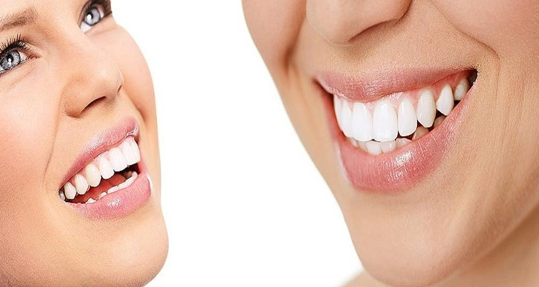 Useful Tips in Choosing a Cosmetic Dentist